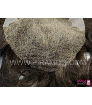 پروتز طبیعی موی مردانه